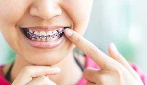 young girl pointing out dental braces in tx after orthodontic services in tx